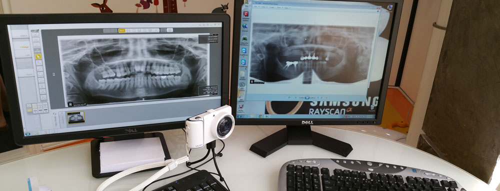 Radiologie - sistem computerizat