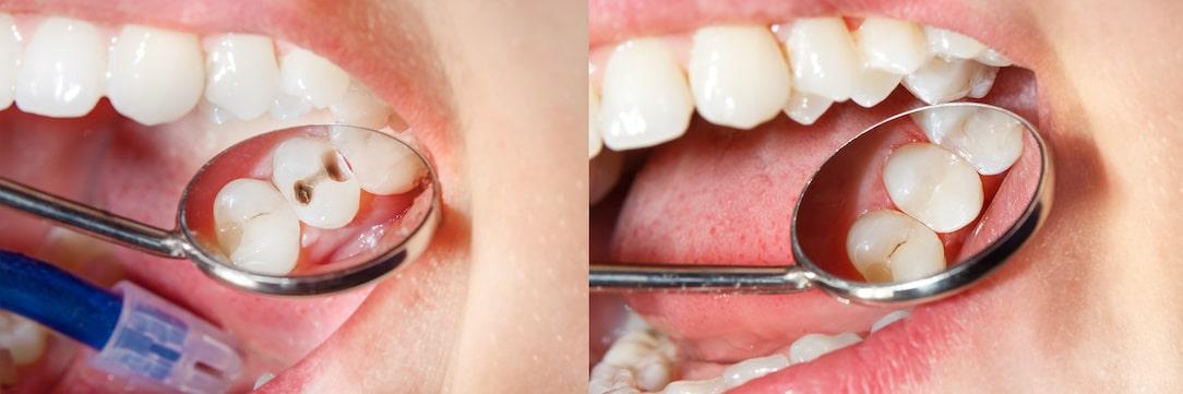 sigilari dentare