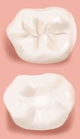 sigilari dentare inainte dupa